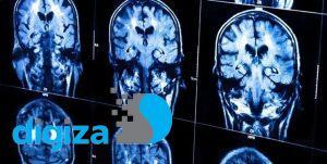 تسریع ارتباط بین بخشهای مختلف مغز توسط دانشمندان ایرانی