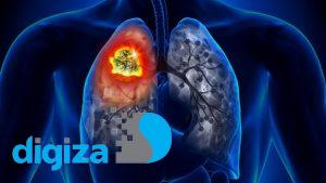 تشخیص به موقع سرطان ریه با کمک یک مولکول کوچک