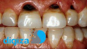 جلوگیری از پوسیدگی دندانها به کمک نانوذرات