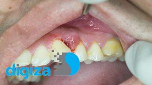 مخربترین تاثیرات دیابت نوع ۲ بر دهان و دندان