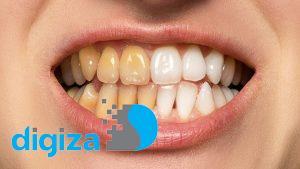 چگونه در فتوشاپ دندانها را سفید و درخشنده کنیم؟